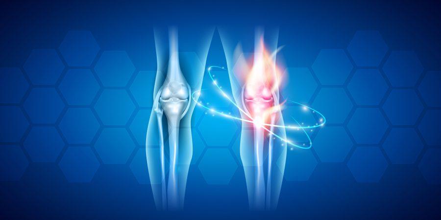 Program profilaktyki wczesnego wykrywania reumatoidalnego zapalenia stawów (RZS)